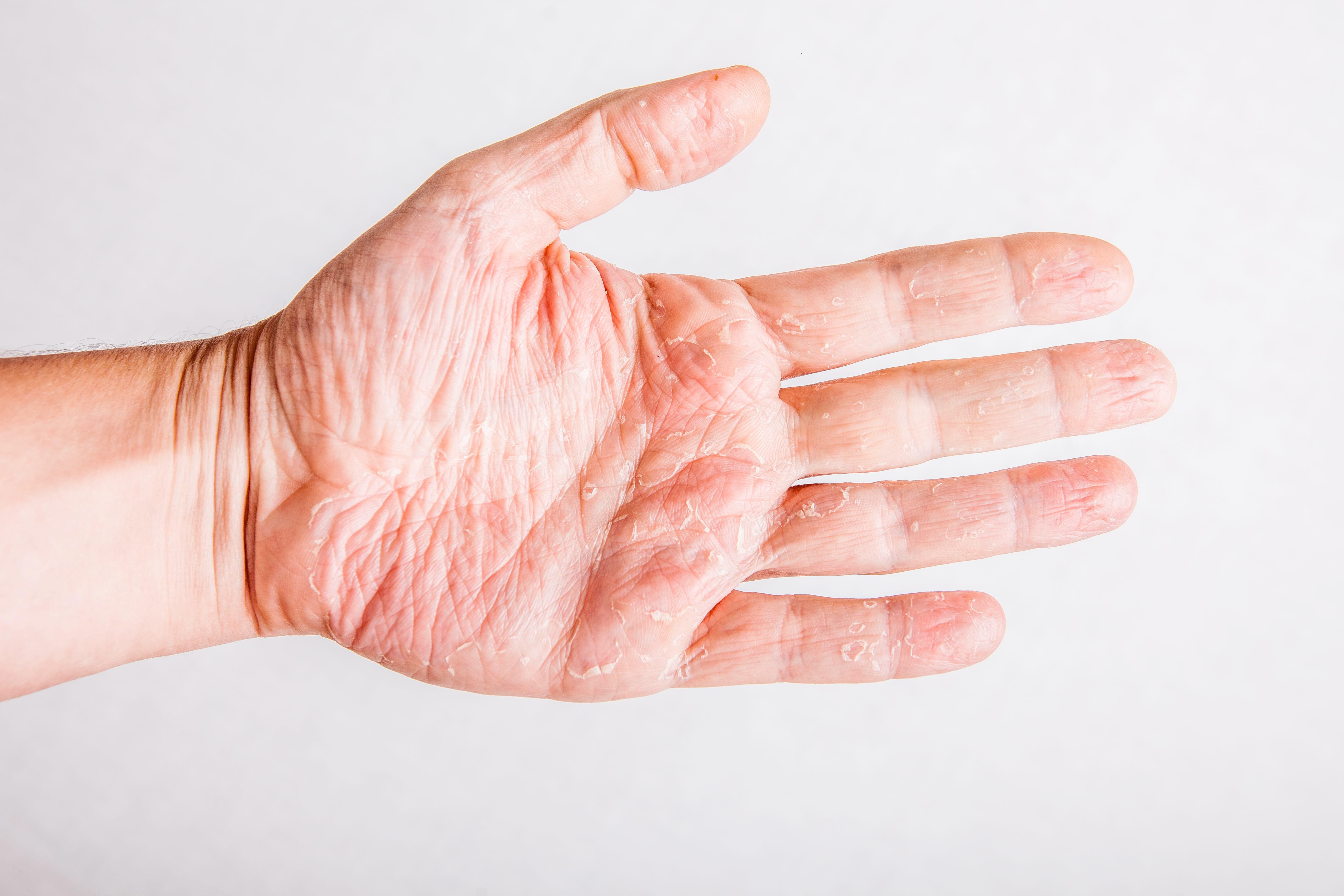vandallergi på hænder