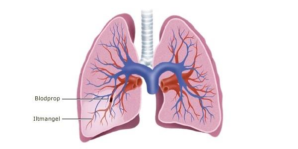 træthed efter blodprop i lungen