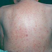 Fnat er en smitsom hudlidelse, der kræver behandling