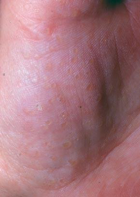 små kløende knopper på fingrene