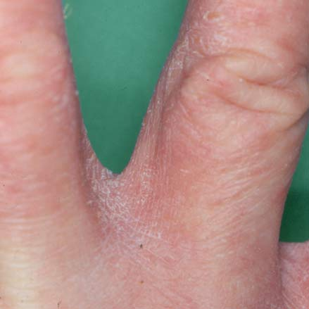 svamp hænder