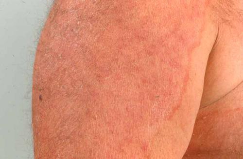 svampeinfektion i huden